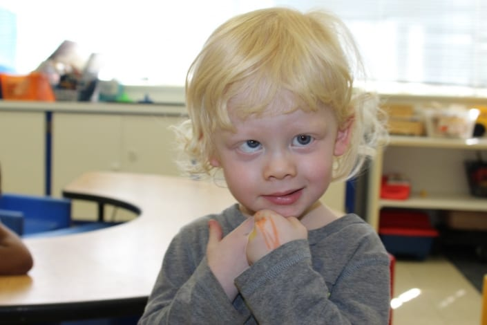A preschool boy with albinism smiles in his classroom